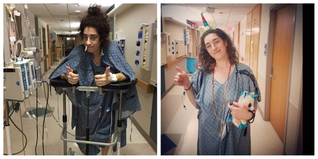 First walk-first surgery vs First walk-third surgery